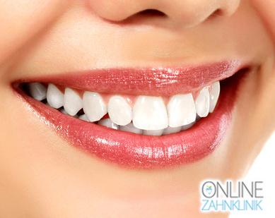 Professionelle Zahnreinigung – Schönheitspflege für Ihre Zähne